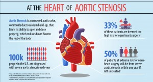 MDT-aortic-stenosis-infographic-300ppi